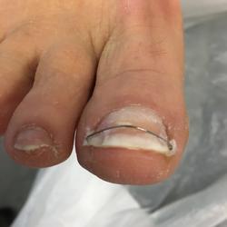 Ingroeiende nagel